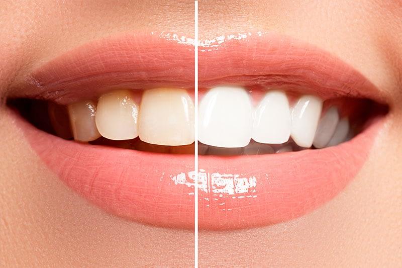 BLANQUEAMIENTO Tratamiento estético dental